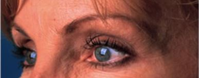 Case Study - After Image - Crows Feet