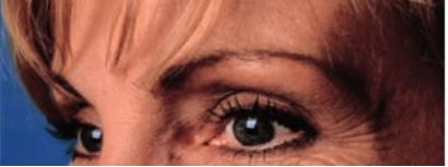 Case Study - Before Image - Crows Feet